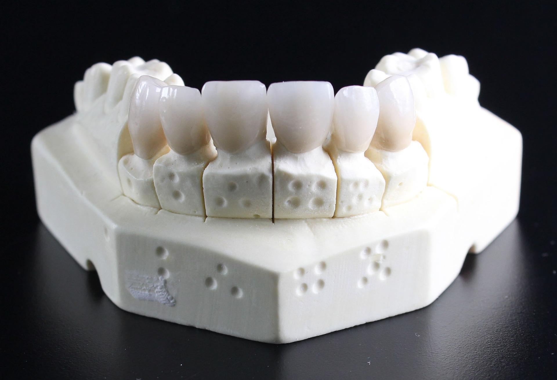 etansare dentara