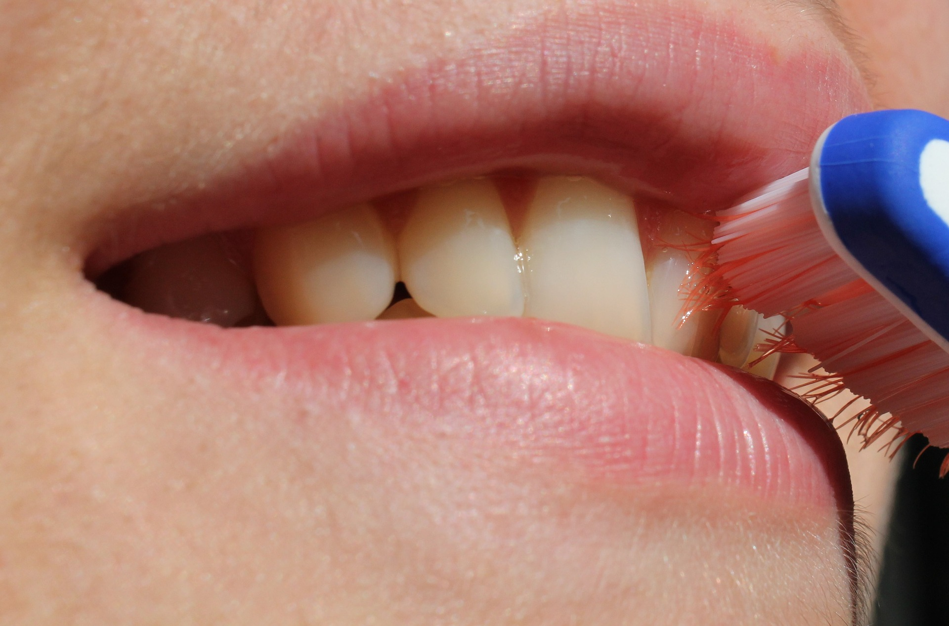 implant dentar Bucuresti
