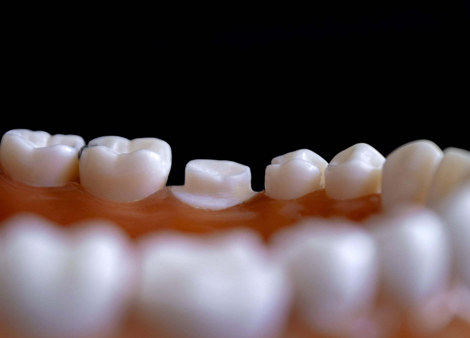 cauzele hipersensibilitatii dentare