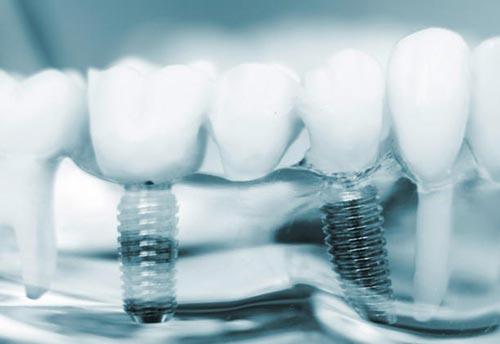 implant dentar în Bucuresti