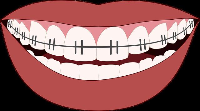 pierdere dinti